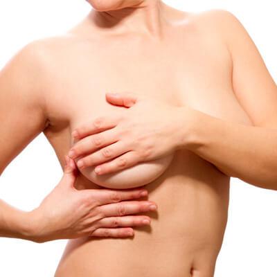 Brustverkleinerung