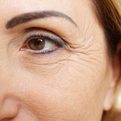 Faltenunterspritzung mit Botox und Fillern