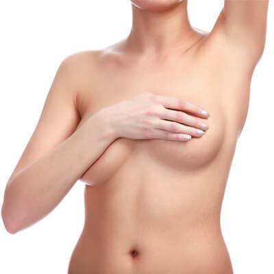 Implantatwechsel